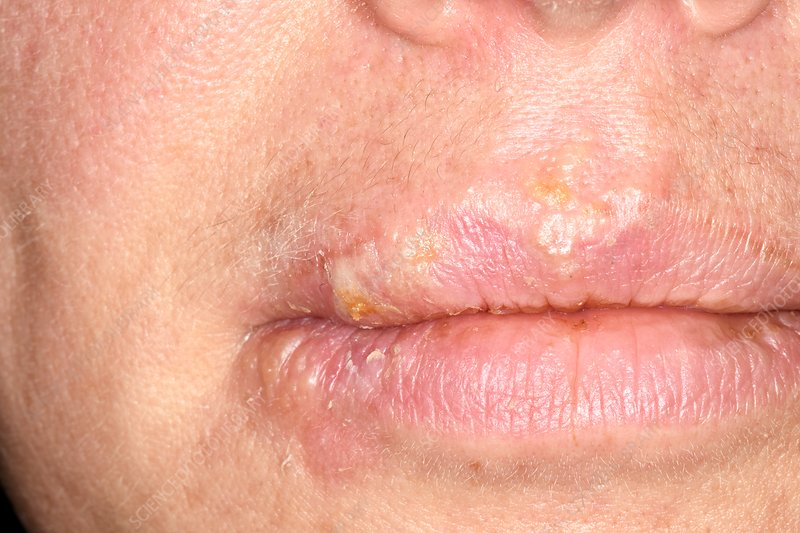 Cold sores on lips