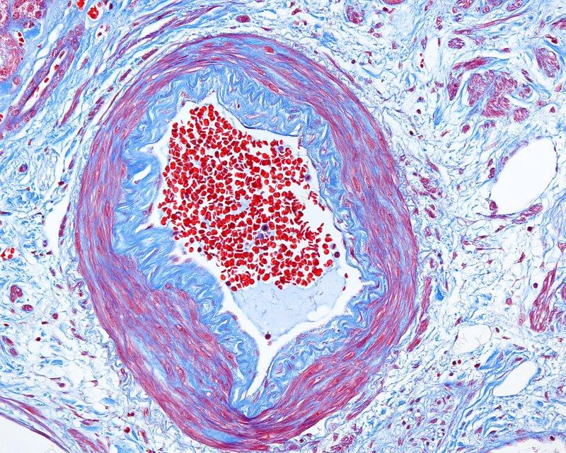 Kidney glomerulus, light micrograph