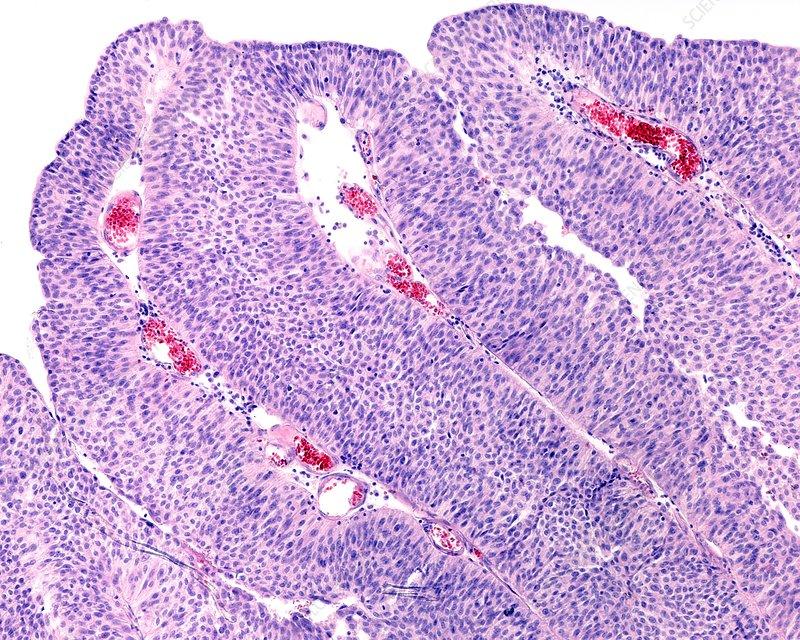cancer bacterian vita de vie