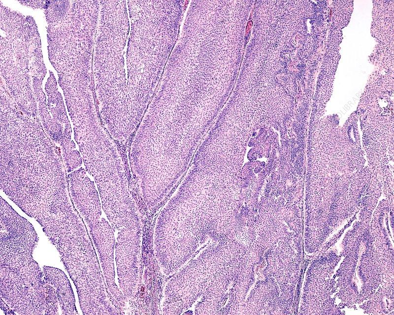 Urinary bladder papilloma, light micrograph