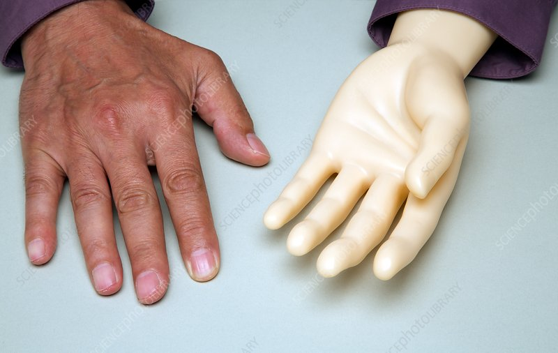 Artificial hand and human hand