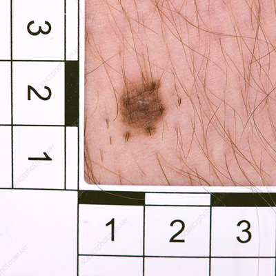 Mole diagnosis