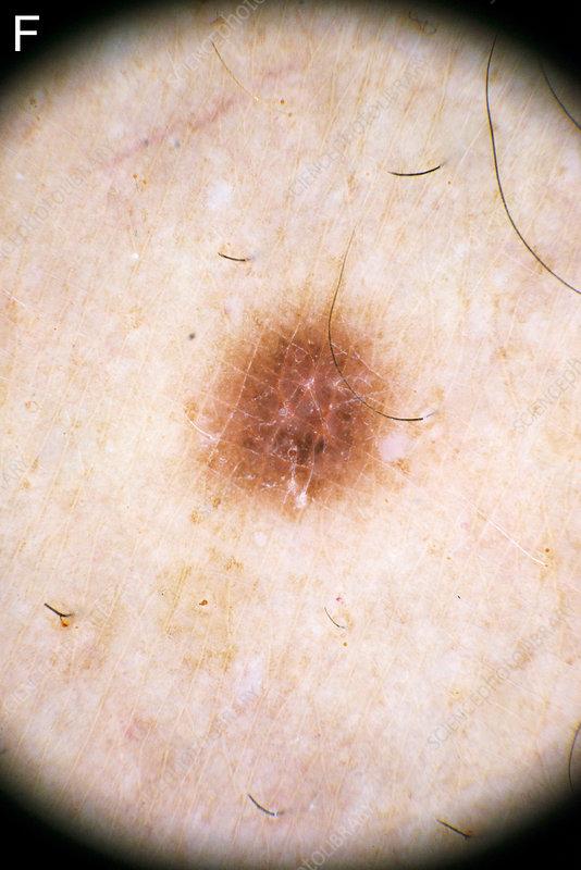 Dermatofibroma diagnosis, dermascope image