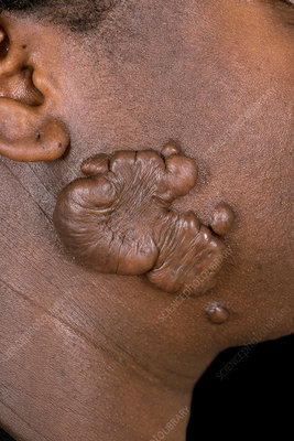 Keloids on the face