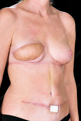Breast reconstruction surgery scars