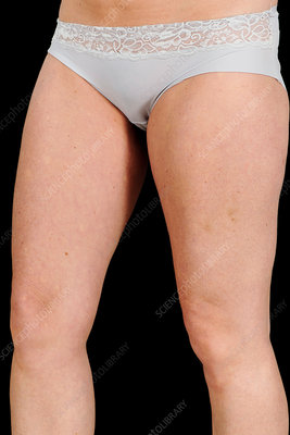 Thigh scar in breast reconstruction surgery