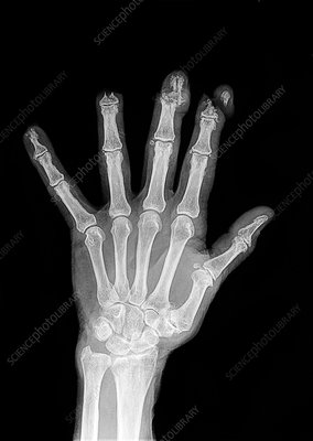 Lawnmower hand injury, X-ray