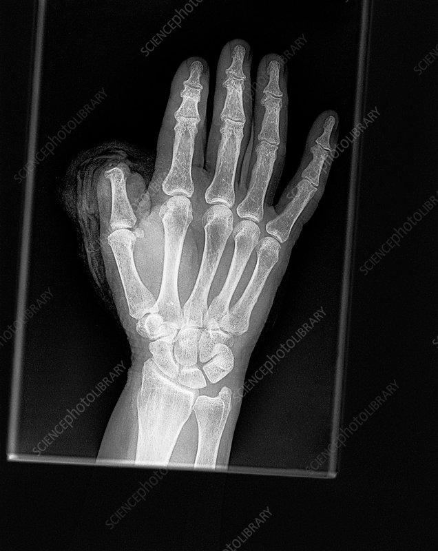 Thumb amputation injury, X-ray