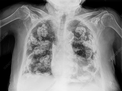 Bilateral pleural calcification, X-ray