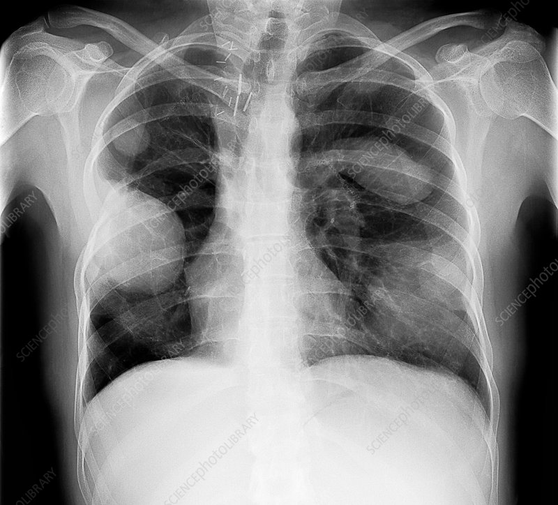Secondary lung cancers, X-ray