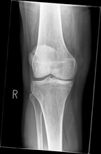 Bipartite patella, X-ray