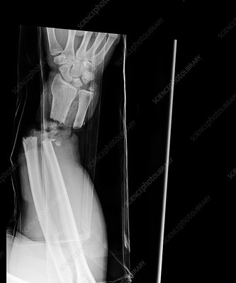 Hand amputation injury, X-ray