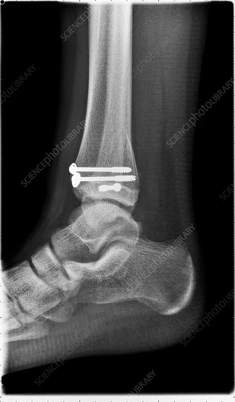Salter Harris ankle fracture, post-operative X-ray