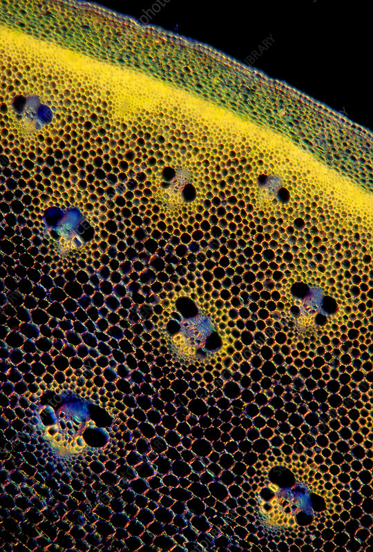 Asparagus (Asparagus officinalis) stem, light micrograph
