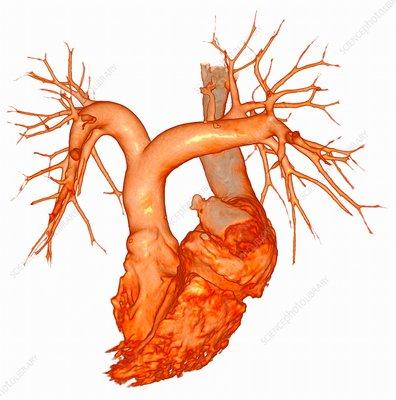 Major heart blood vessels, 3D CT angiogram - Stock Image ...
