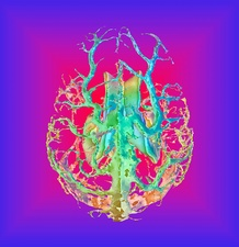 Human brain ventricles and veins, 3D MRI scan