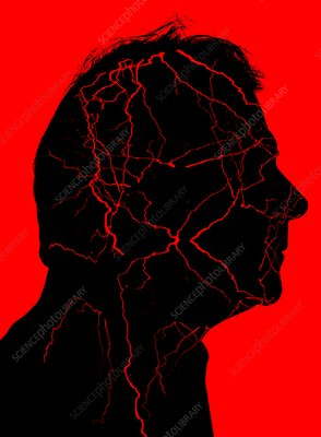Vascular head disorders, conceptual image