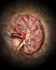Kidney Disease, Coronal Section