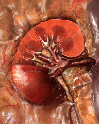 Healthy Kidney, Sectioned