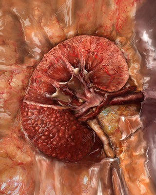 Unhealthy Kidney, Sectioned