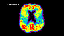 Brain Affected by Alzheimer's Disease, PET Scan