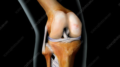 Knee with Early Stage Arthritis, 2 of 4