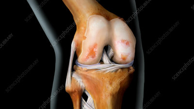Knee with Arthritis, 3 of 4