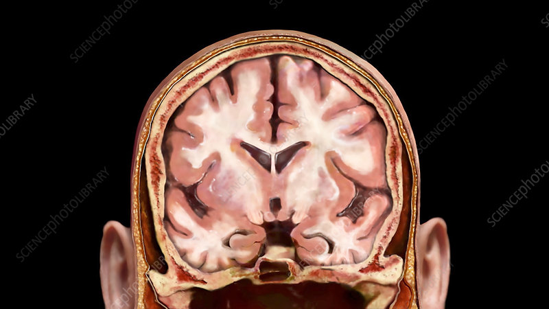 Coronal Section of Brain, Healthy