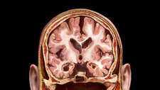 Coronal Section of Brain, Alzheimer's Disease