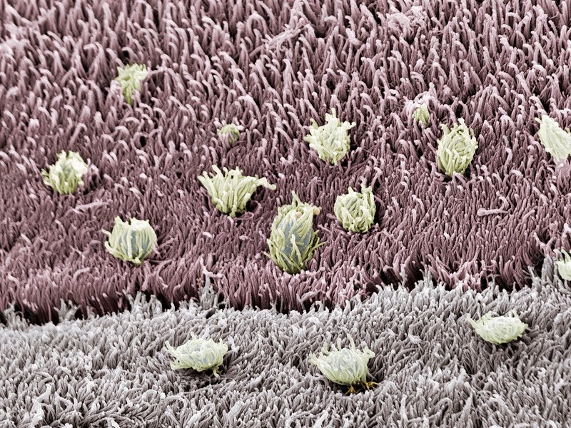 Tapeworm surface, SEM