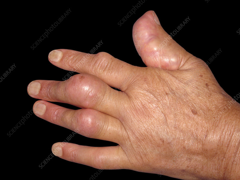 Rheumatoid nodule on fingers