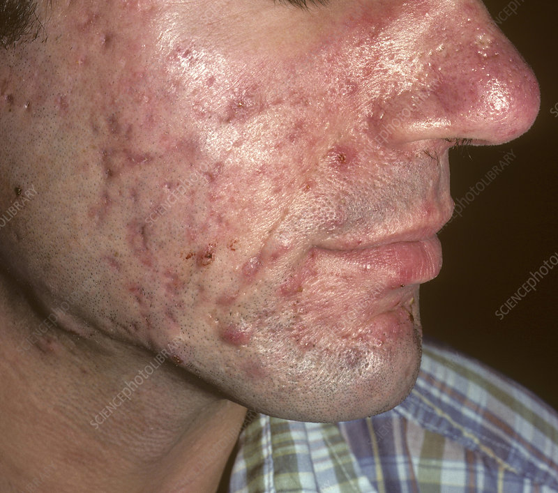 5f3254d908bf Acne conglobata - Stock Image - C038 4491 - Science Photo Library