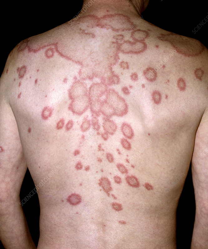 Subacute lupus erythematosus