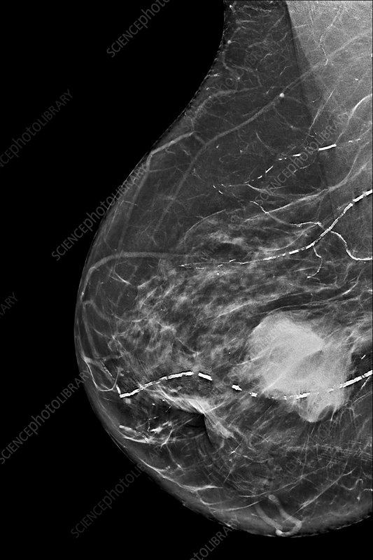 Breast cancer, adenocarcinoma, mammogram