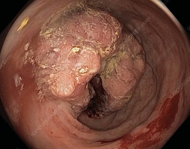 Colon Cancer Adenocarcinoma Endoscope View Stock Image C038 4567 Science Photo Library