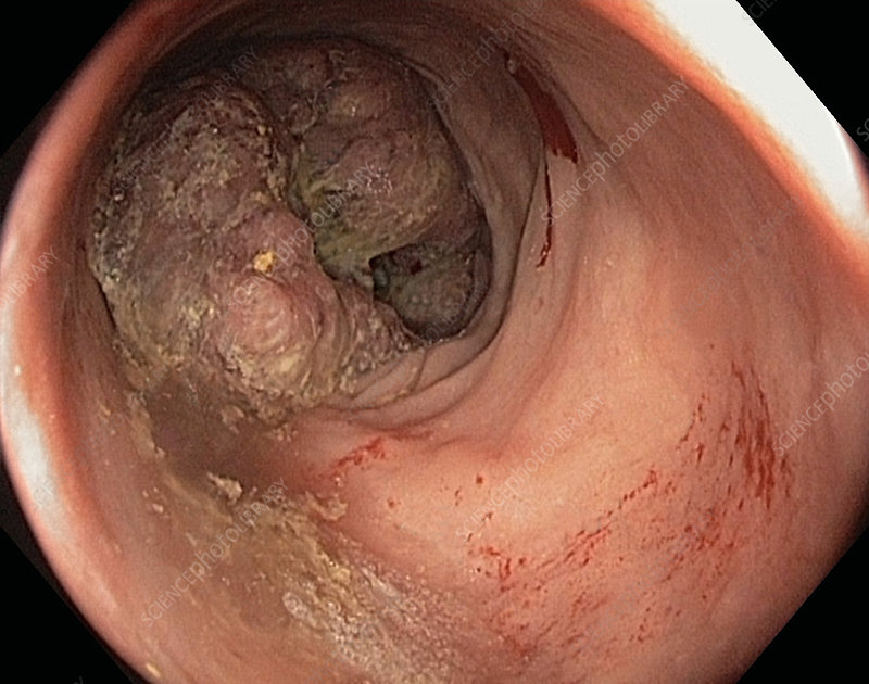 Colon cancer, adenocarcinoma, endoscope view