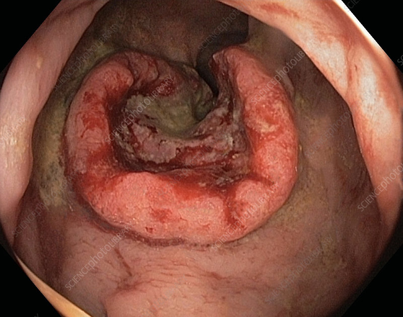 Rectal cancer, adenocarcinoma, endoscope view