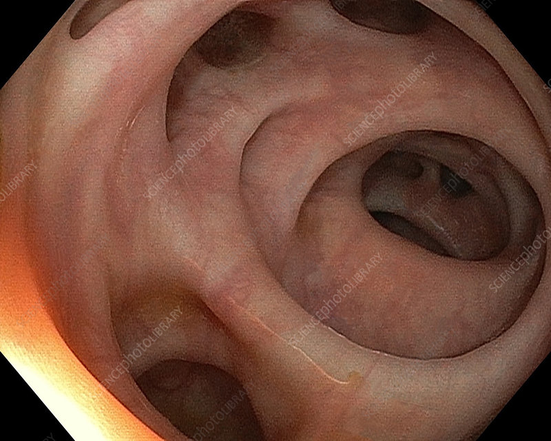 Diverticulosis of the colon, endoscope view