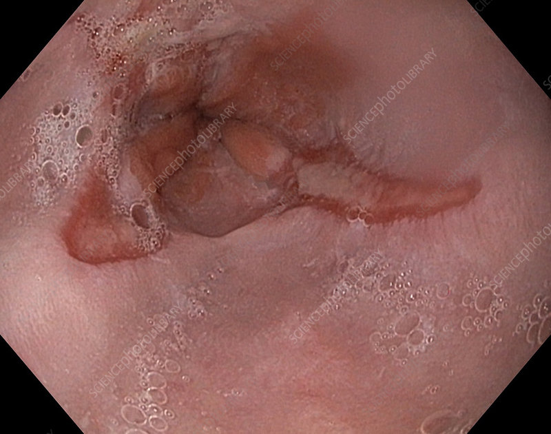 Oesophagitis with ulcers, endoscopic view