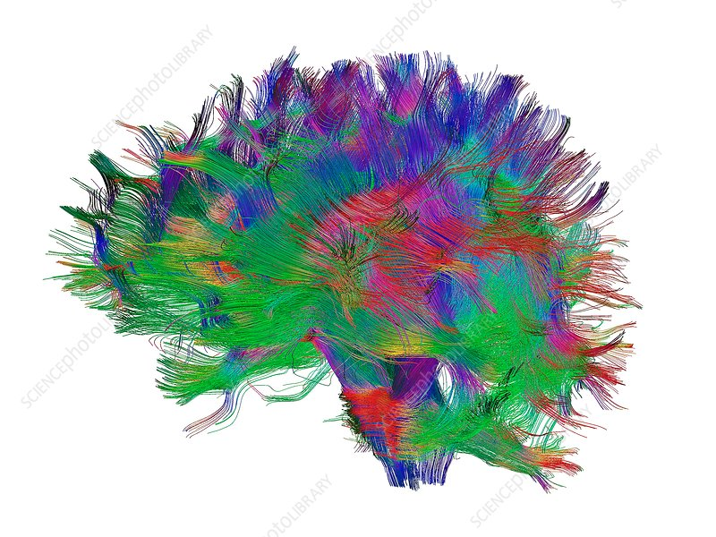 Brain fibres side view left, DTI scan
