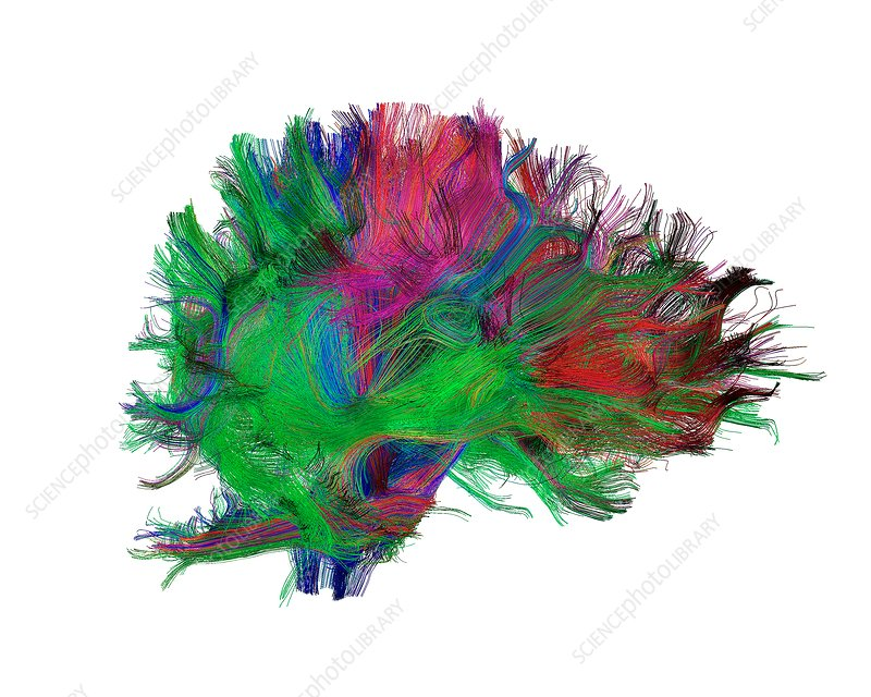 Brain fibres side view right, DTI scan
