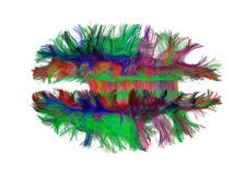 Brain fibres top view, DTI scan