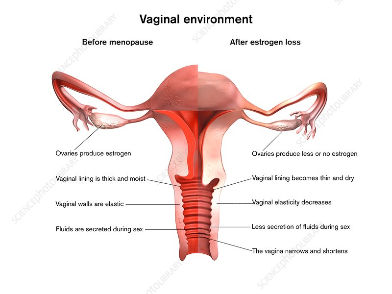 Menopause vaginal effects, illustration