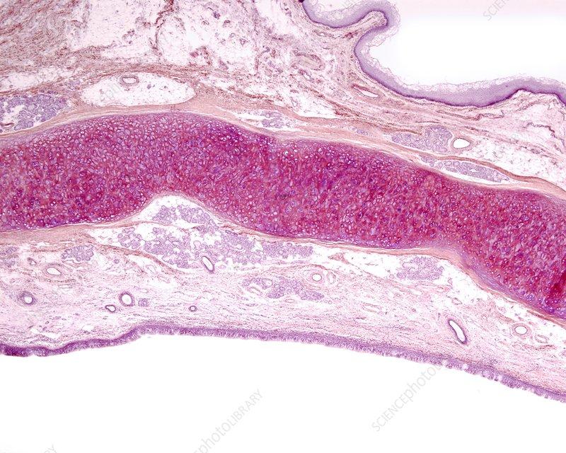 Epiglottis elastic cartilage, light micrograph