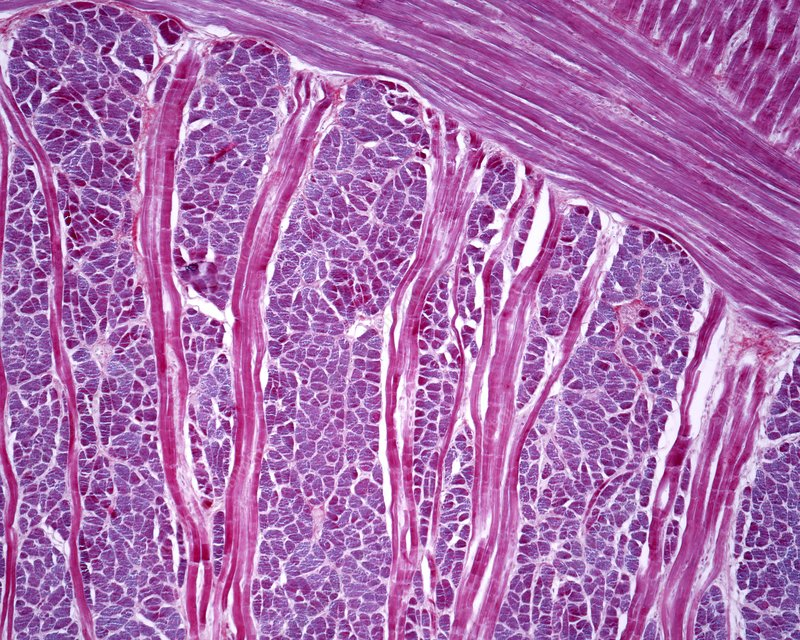 Tongue muscle, light micrograph