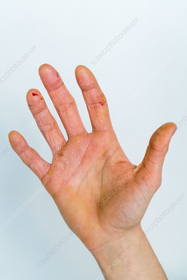 Severe eczematous rash on the hands of a woman