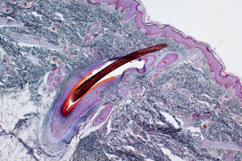 Hair follicle in skin, light micrograph