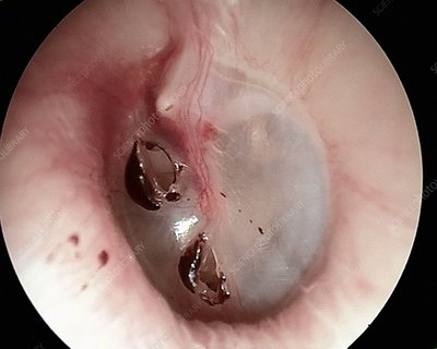 Traumatic perforated eardrum, otoscope view