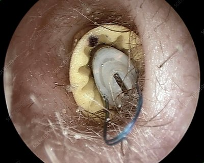 Hearing aid in the ear canal, otoscope view