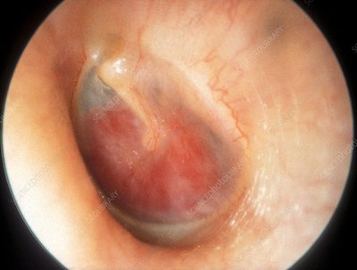 Glomus tumour, otoscope view